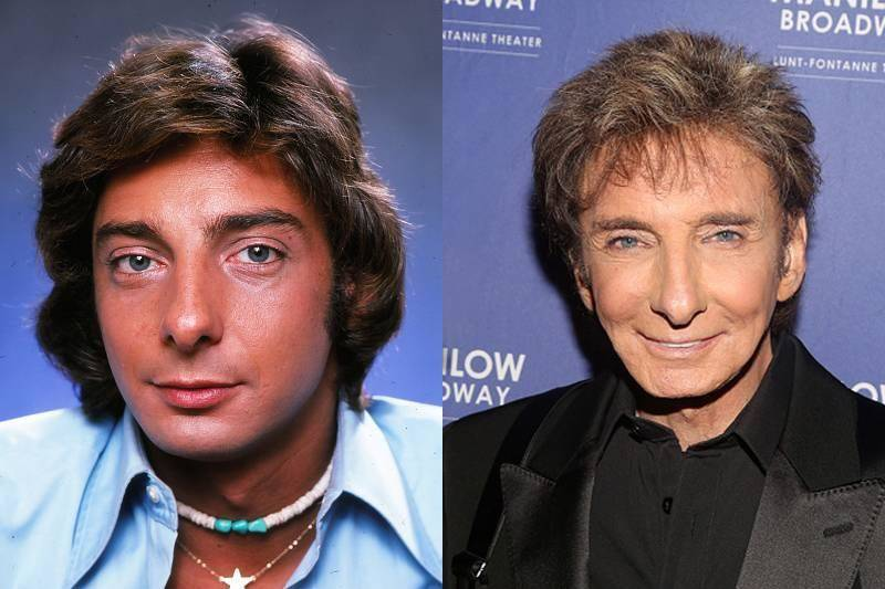 barry-manilow-plastic-surgery-80660