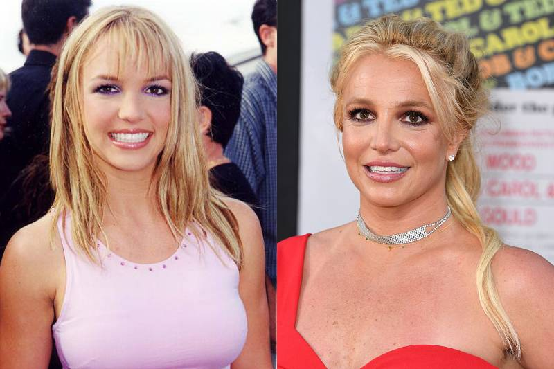 britney-spears-plastic-surgery