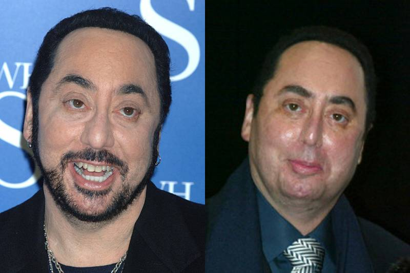 david-gest-plastic-surgery