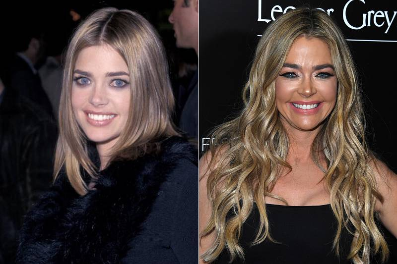 denise-richards-plastic-surgery