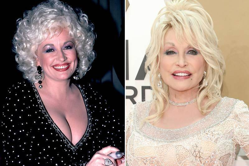 dolly-parton-plastic-surgery-75850