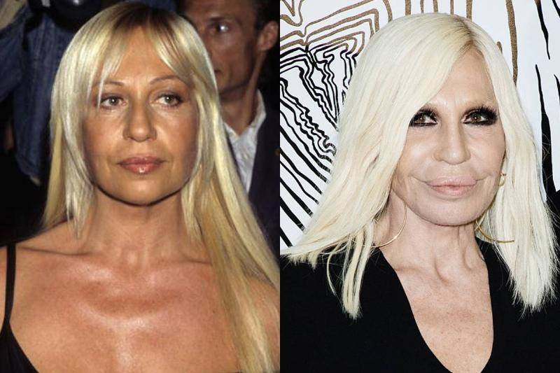 donatella-versache-before-after-plastic-surgery-80311