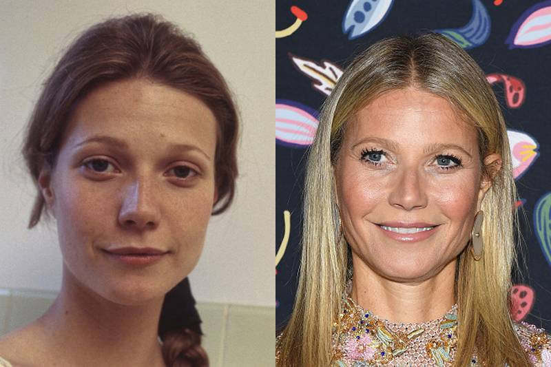 gweneth-paltrow-plastic-surgery