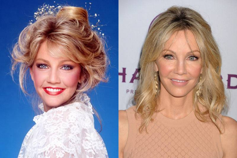 heather-locklear-plastic-surgery