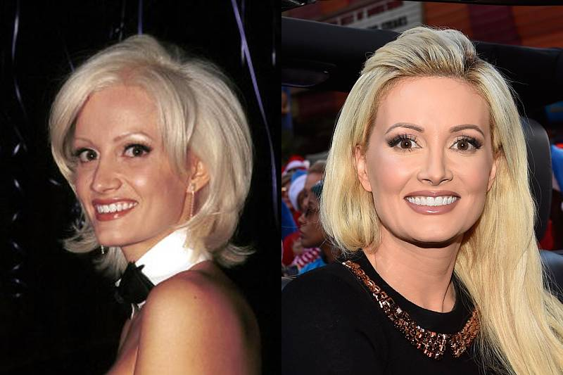 holly-madison-plastic-surgery