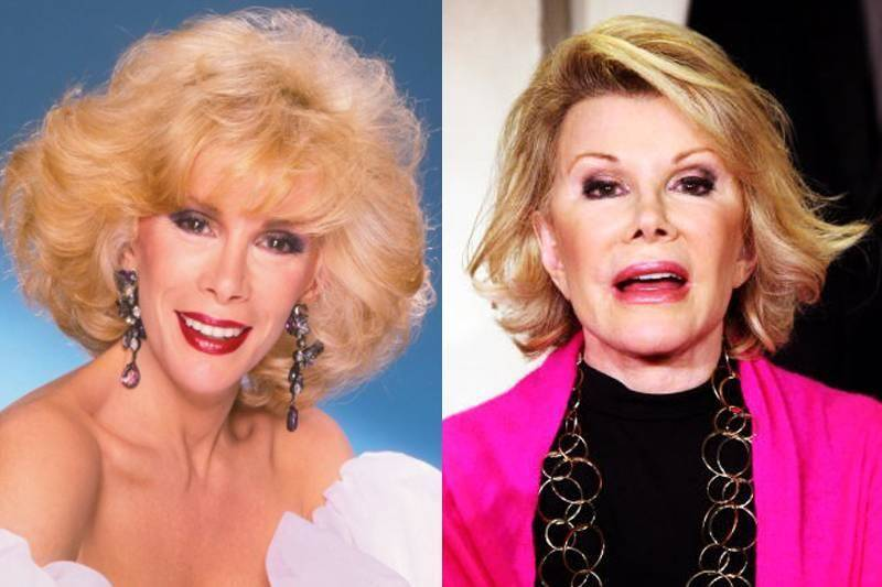 joan-rivers-plastic-surgery-82695