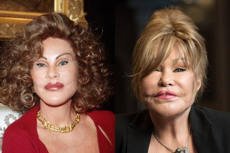 jocelyn-wildenstein-plastic-surgery-93935