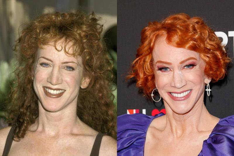 kathy-griffin-before-after-plastic-surgery-11650