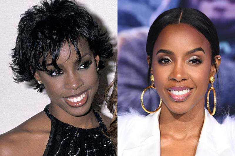 kelly-rowland-plastic-surgery