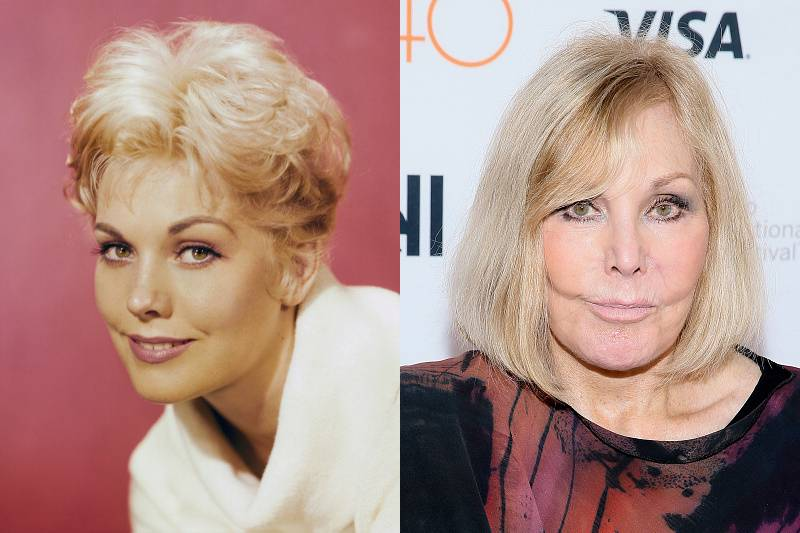 kim-novak-plastic-surgery