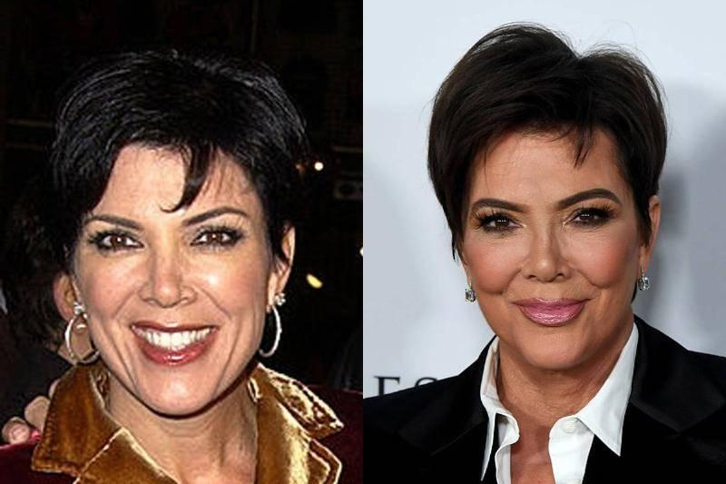 kris-jenner-before-after-plastic-surgery-29995