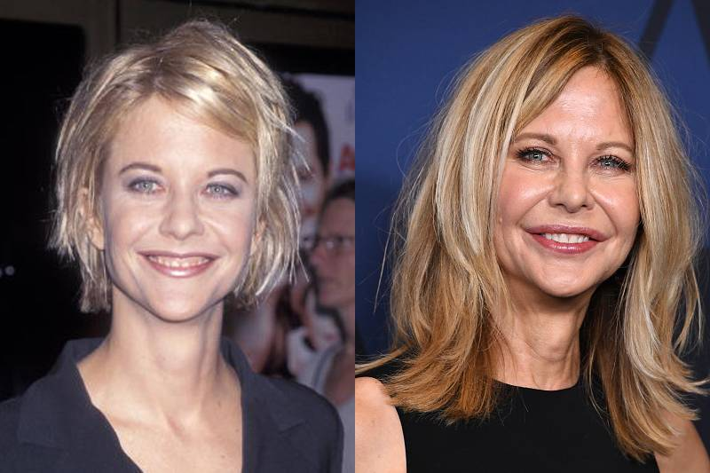 meg-ryan-plastic-surgery