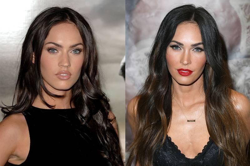megan-fox-plastic-surgery-12540