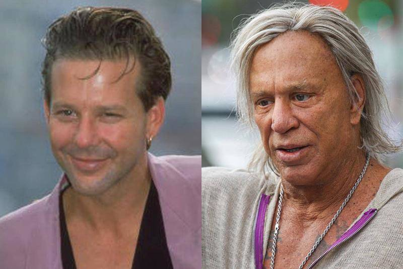 mickey-rourke-before-after-plastic-surgery-53152