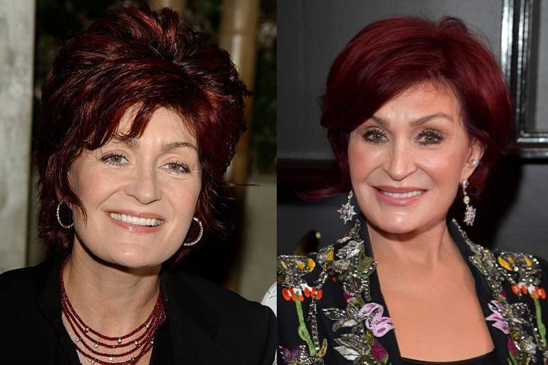 sharon-osbourne-plastic-surgery-21061