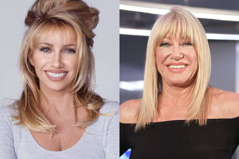 suzanne-somers-plastic-surgery-11653