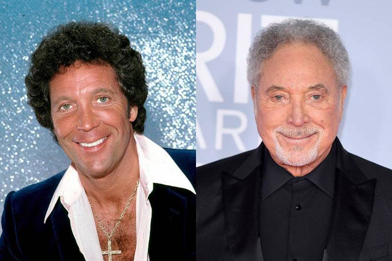tom-jones-before-after-plastic-surgery-75193