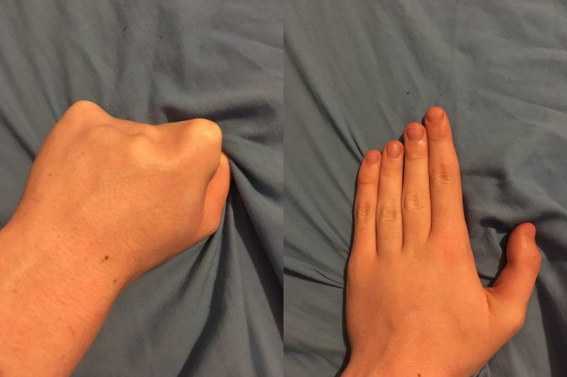 genetically pushed back knuckles