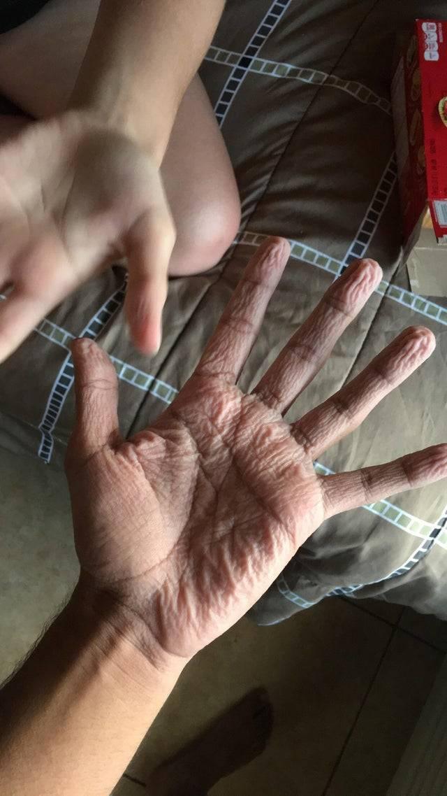 super pruney hands