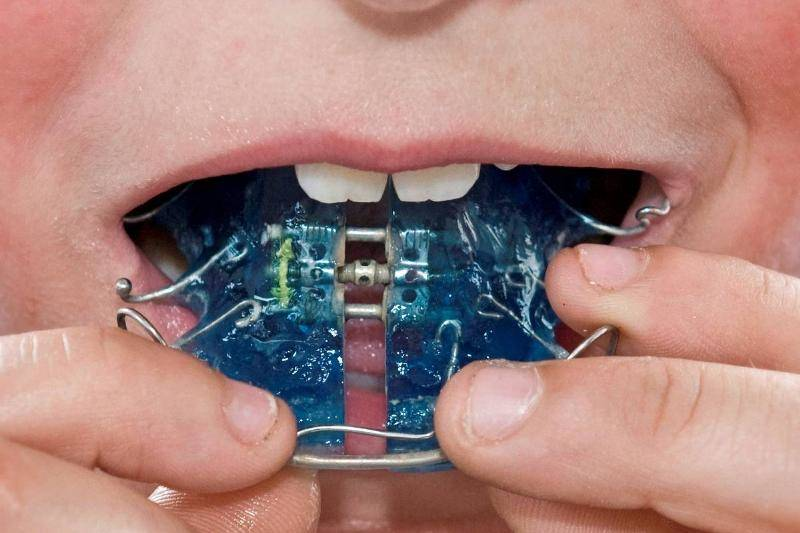 boy-putting-on-orthodontic-braces.-91723